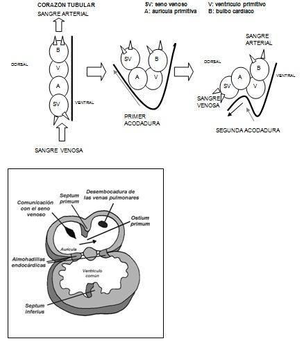 Anomalías cardíacas congénitas