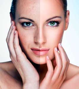 peeling facial antes y despues