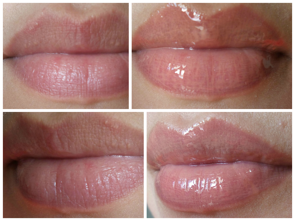 Gloss que aumenta os lábios Sally Hansen Lip Inflation