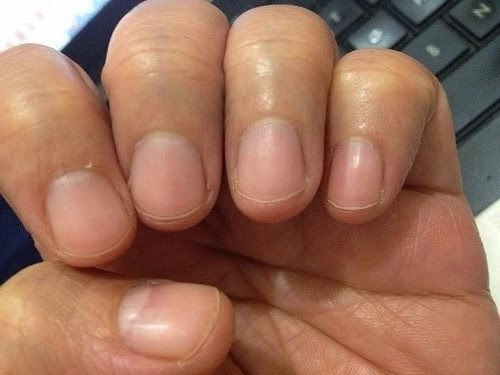 The Things You Should Really Watch Out For Are Signs Of Underlying Illnesses Somewhere Else In Your Body Below Some Nail Color Changes