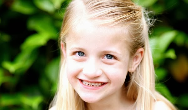 Angelman Syndrome - Causes, Symptoms, Life Expectancy ...