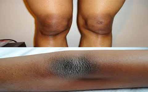 Lutut Dan Siku Hitam