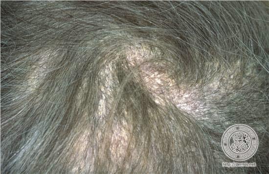 comment soigner les plaques de psoriasis sur le cuivre chevelu