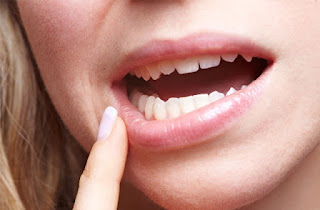 Cure naturali contro gengiviti stomatiti e afte