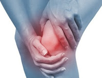 Runners Knee - Patellofemoral Pain Syndrome