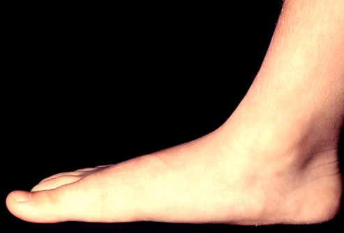Healthy Life: FOOT Problems