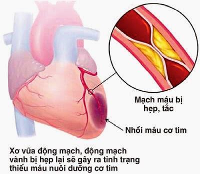 Cách phòng tránh bệnh tim