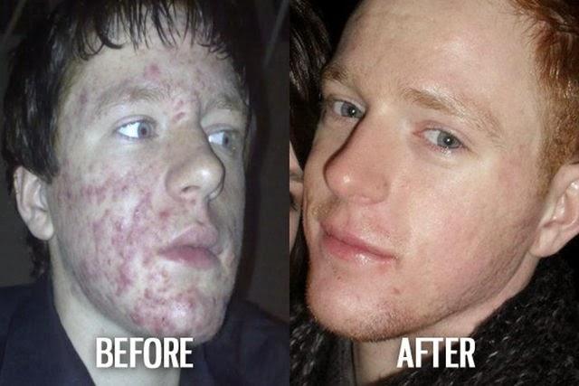 De feos a guapos, el antes y el después.