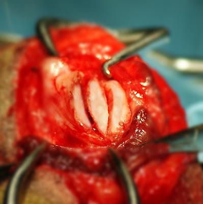 profundización osteotomía en luxación rotula