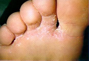 La aplicación del sulfato de cobre para el tratamiento del hongo de los pie