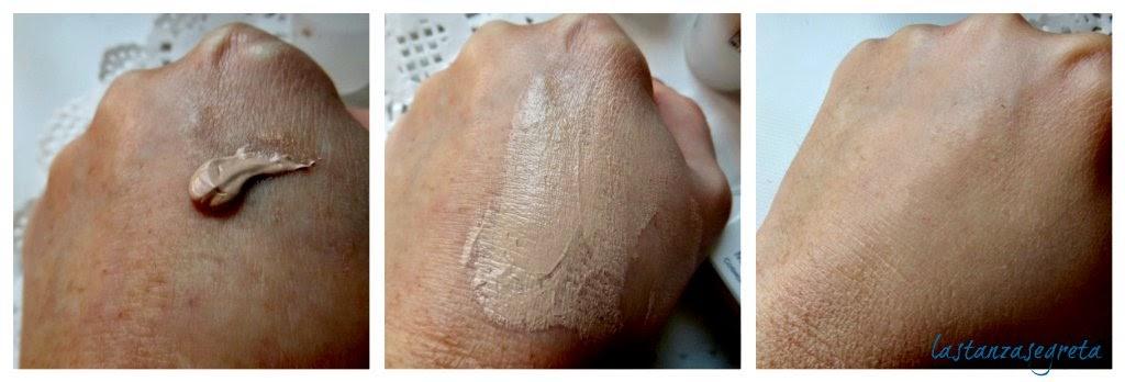 Togliere posti di pigmentary su una faccia dopo gravidanza