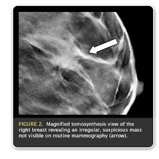 what is digital breast tomosynthesis