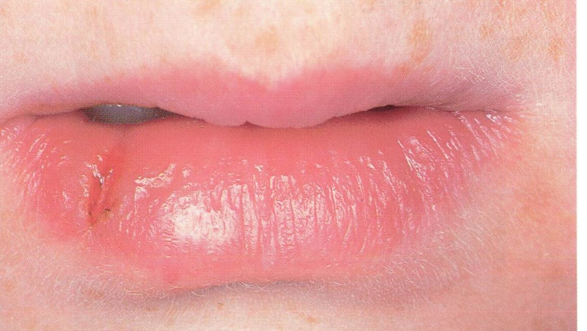 What Is Impetigo On The Lips? | | Natural Impetigo Treatments