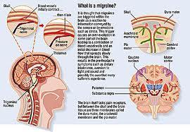 diagram of migraine headaches pur life young  healthy  elegant kenali migrain serta  pur life young  healthy  elegant kenali migrain serta