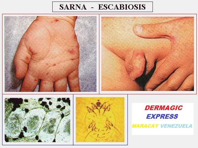 SCABIES AND GENETICS