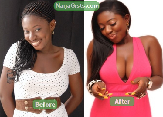 yvonne jegede breast surgery