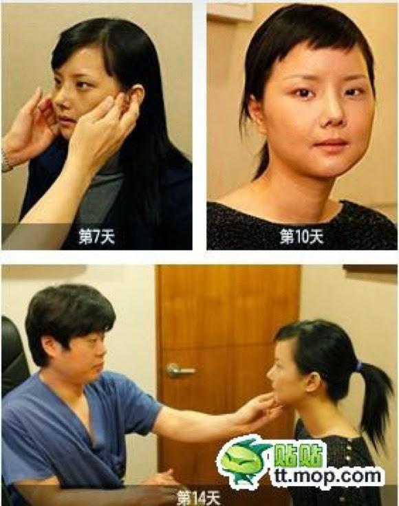 Foto: Wanita Korea Sesudah Dan Sebelum Operasi Plastik Yang Jarang Dan Langka