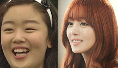Sunhwa Secret Before After
