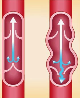 Quali medicine da varicosity di posizione di vene