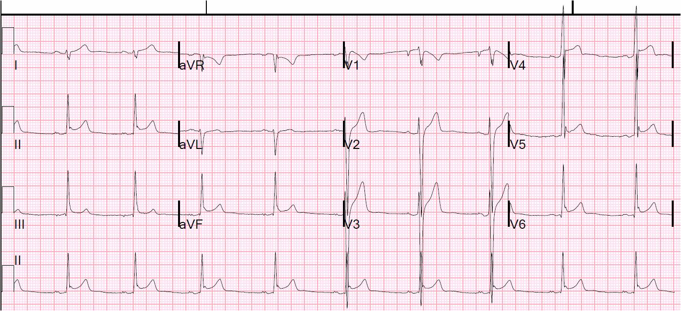 Ont Elevation Images : Dr smith s ecg inferior st elevation what is the