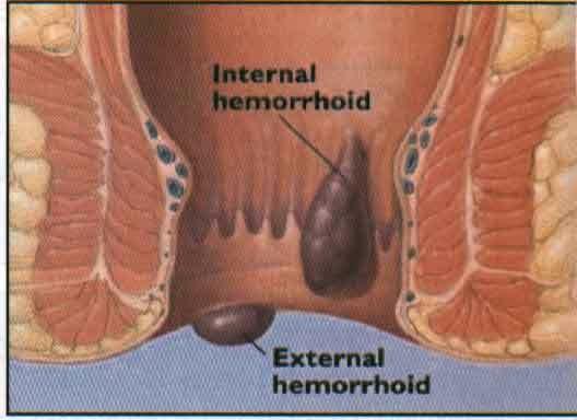 obat herbal untuk sakit wasi, aloe vera obat wasir, cara membuat obat herbal wasir