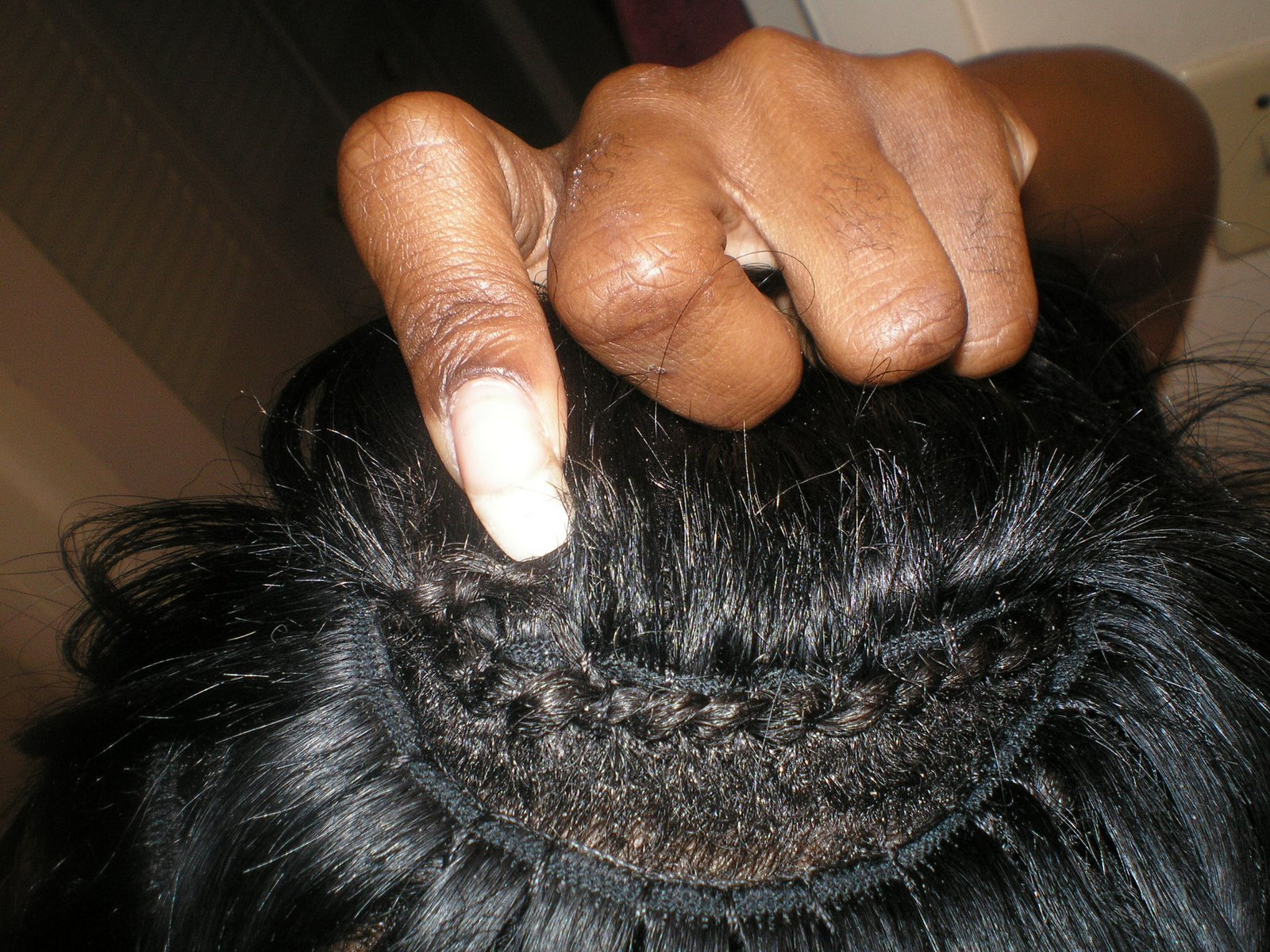 When My Scalp Itches, Is My Hair Growing?