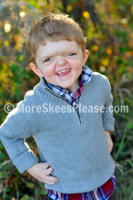 Aiden - Apert syndrome
