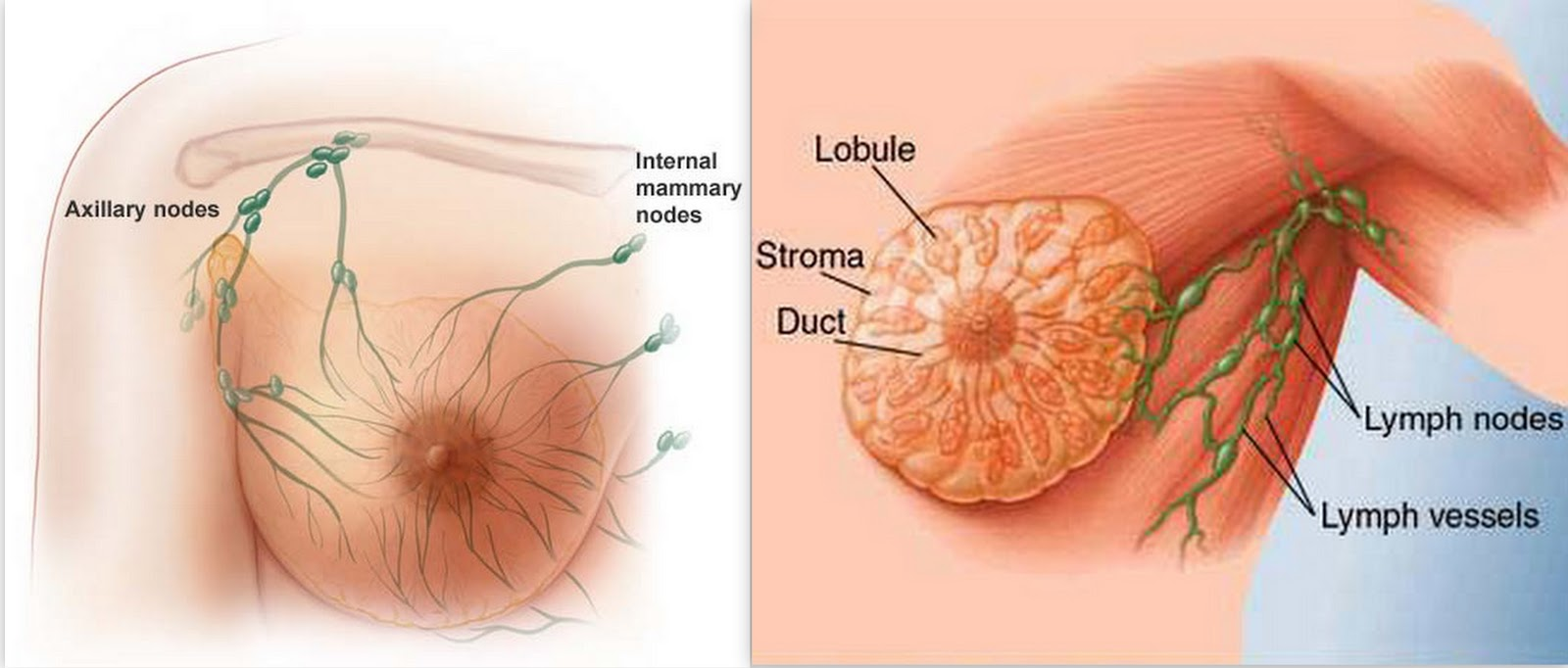 breast cancer affects one in eight women during their lives breast ...