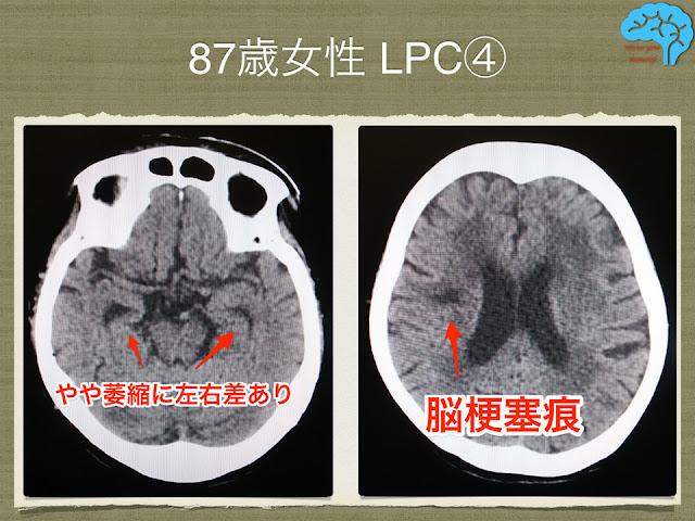 LPC+VaDの頭部CT