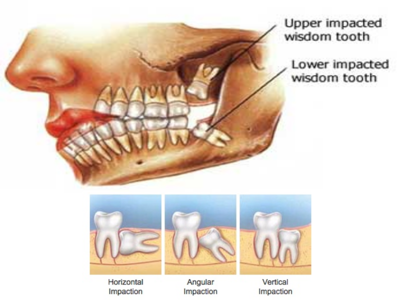 TOP TIPS FOR REMOVAL OF WISDOM TEETH PAIN