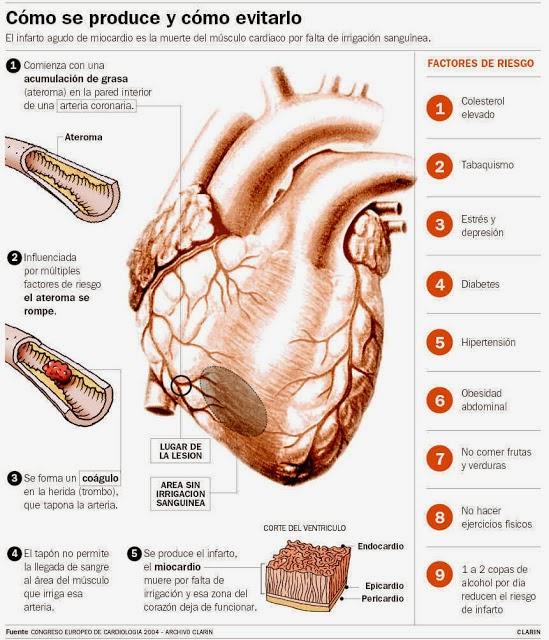 Angina inestable e infarto sin elevación de ST