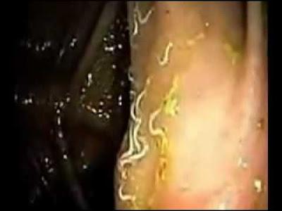 El vídeo como luchar con los parásitos