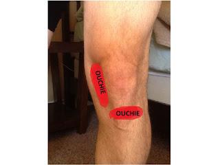 Real World Runner Knee Pain Free