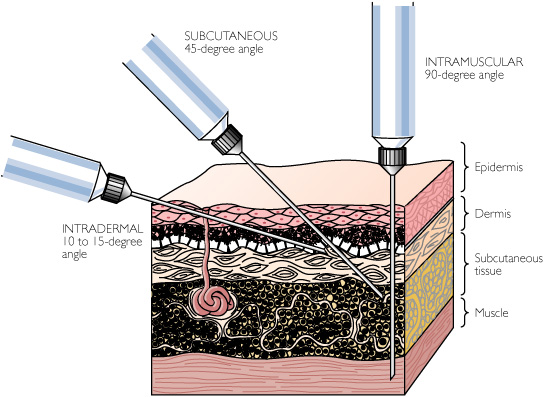 Subcutaneous Injection Sites for Injections