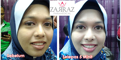 lipstik terbaik, lipstik rawatan bibir, lip balm, lipstick collagen