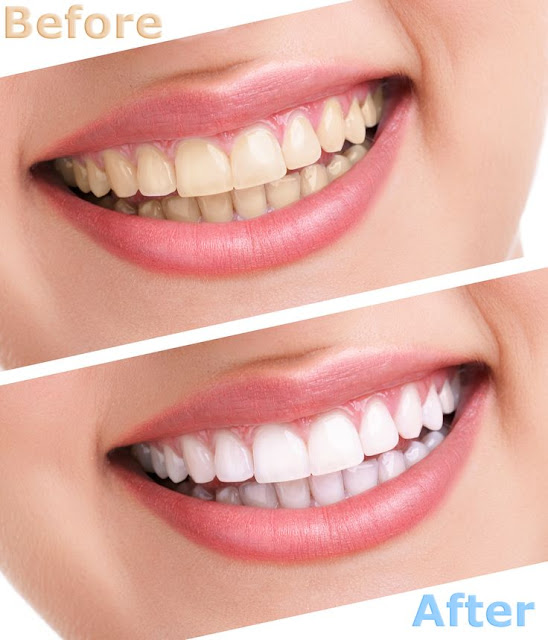 Natural Way to Whiten Teeth at Home