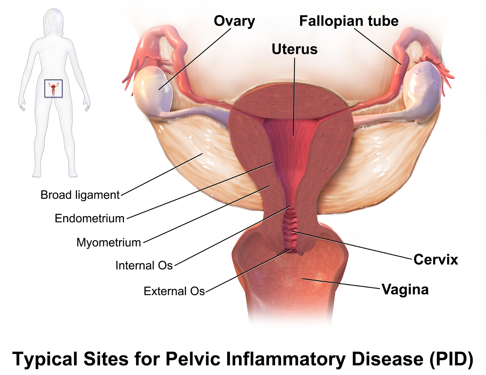How To Naturally Cure Female Infertility Effective Natural Remedy