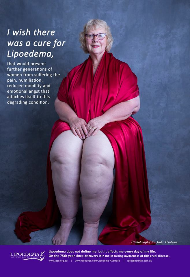 What are some treatment options for lipedema?