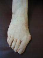 scarpe da punta e ortopedia