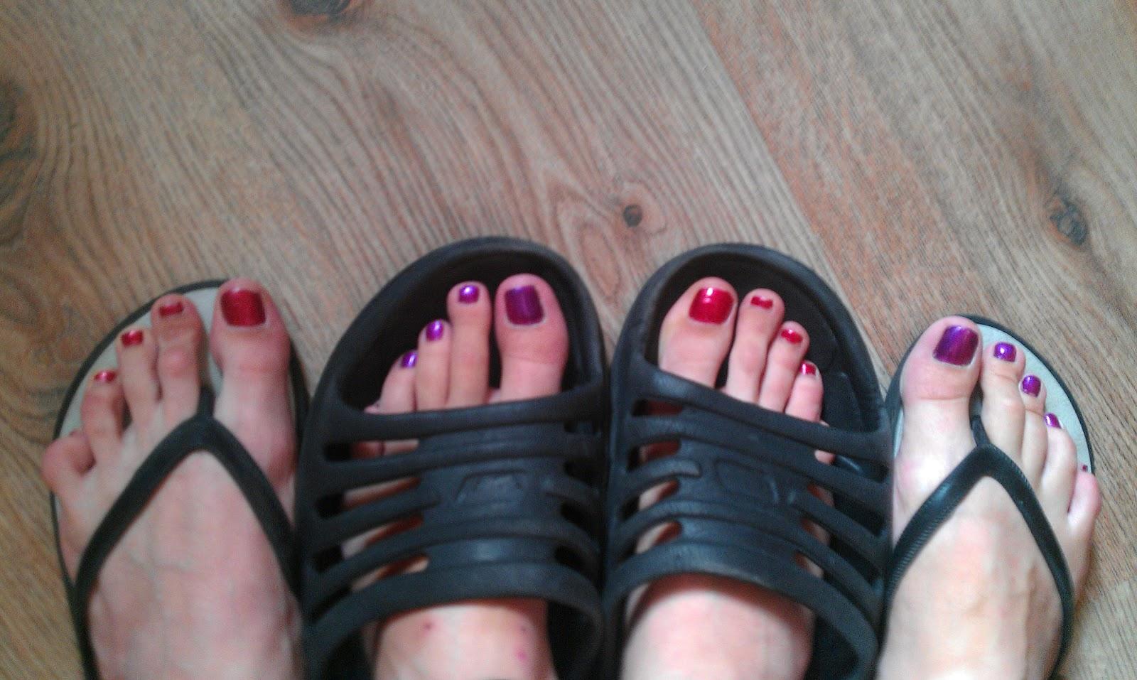 К чему снится плохие ногти на ногах