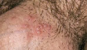Penyakit Herpes Pada Genital