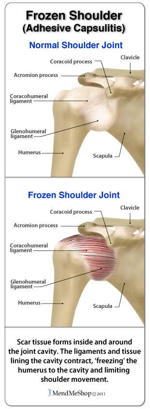how to live with frozen shoulder