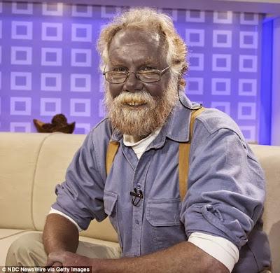الرجل الازرق يتوفى عن عمر 62 عاما