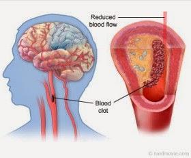 pengobatan herbal stroke