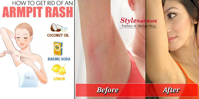 How To Get Rid Of An Armpit Rash - Rash Of Underarms