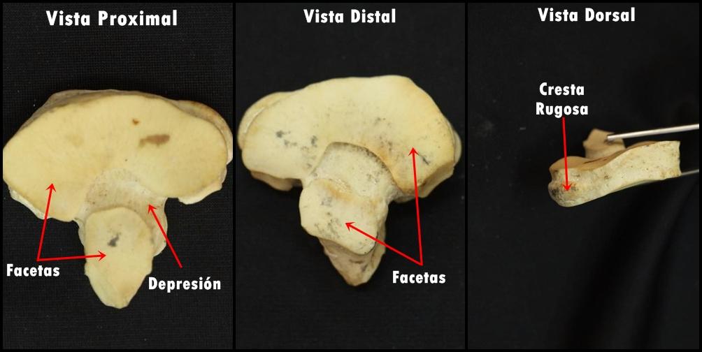 Osteologia: El Tarso ESPECIE: EQUINO | Anatomía :Grupo 7 . Facultad ...