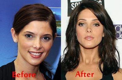 chatter busy ashley greene nose job
