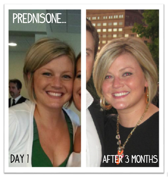 Facial puffiness from low dose prednisone