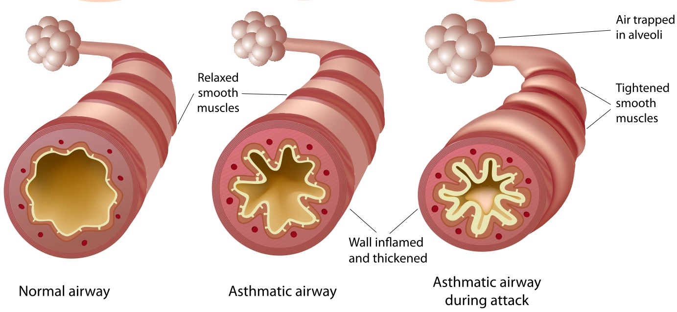 Prednisone for Asthma: Does It Work?