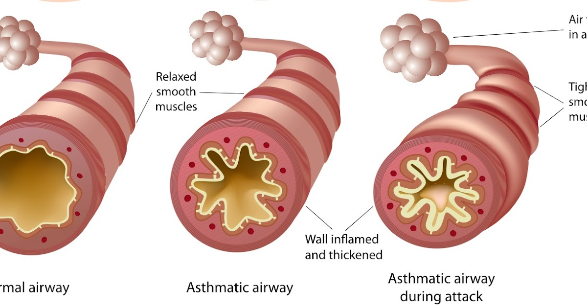 asthma symptoms and preventions essay Cystitis is inflammation of the bladder most often it is caused by a bacterial infection known as a urinary tract infection (uti.